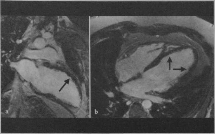 Снимки МРТ и КТ. Миокардит