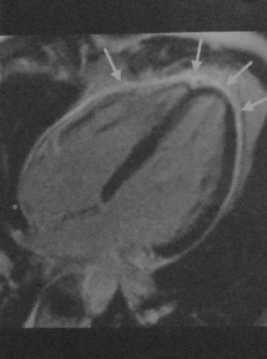 Снимки МРТ и КТ. Острый перикардит