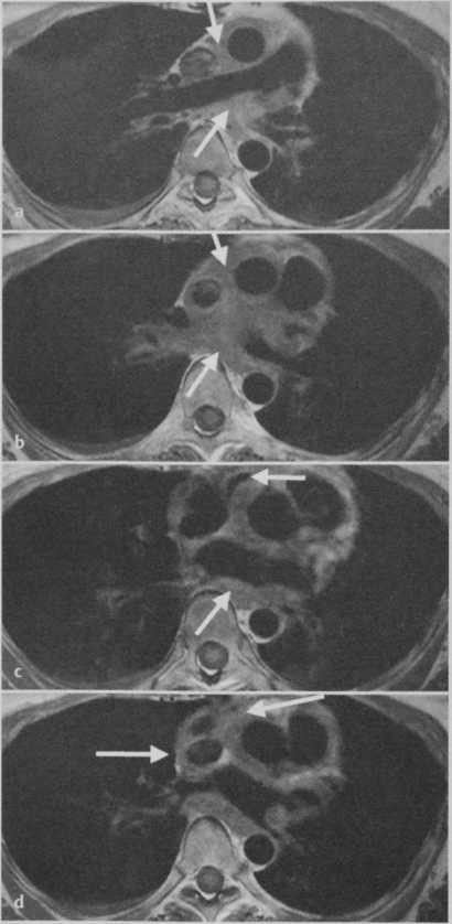Саркома легочной артерии