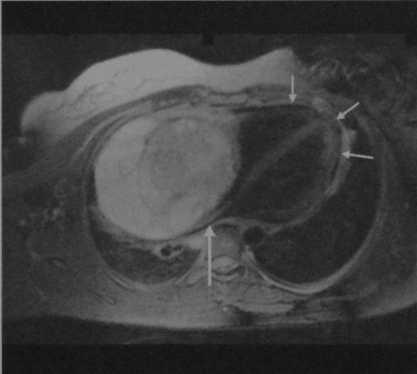 Снимки МРТ и КТ. Опухоли средостения