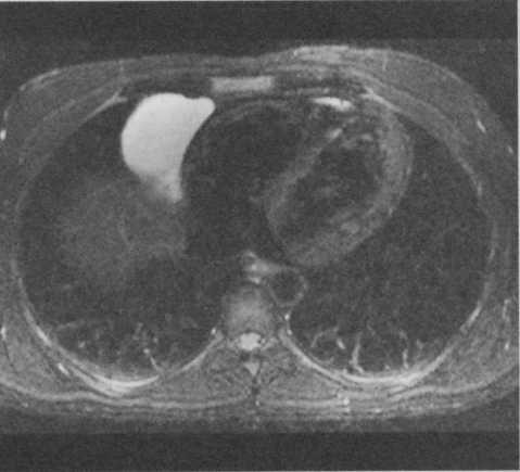 Снимки МРТ и КТ. Перикардиальные кисты