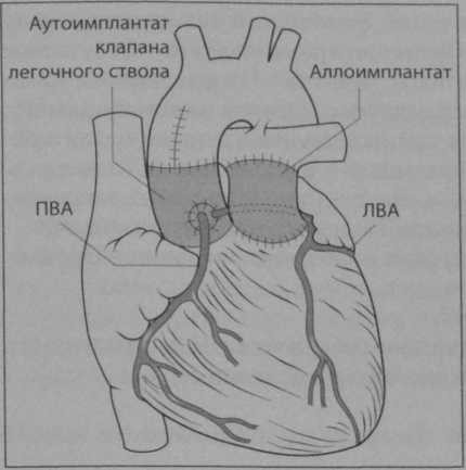 Снимки МРТ и КТ. Протезирование аортального клапана по Россу