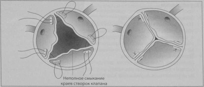 Снимки МРТ и КТ. Реконструкция аортального клапана
