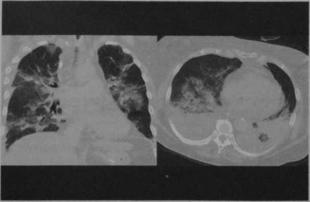 Снимки МРТ и КТ. Острая сердечная недостаточность