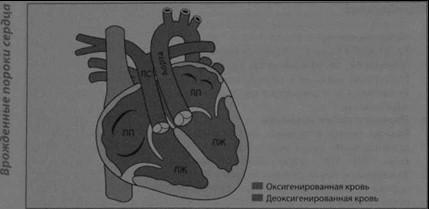 Снимки МРТ и КТ. Корригированная транспозиция крупных артерий