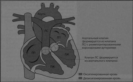 Снимки МРТ и КТ. Транспозиция крупных артерий (декстротранспозиция)