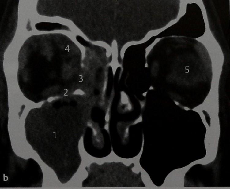 Снимки МРТ и КТ. Флегмона глазницы