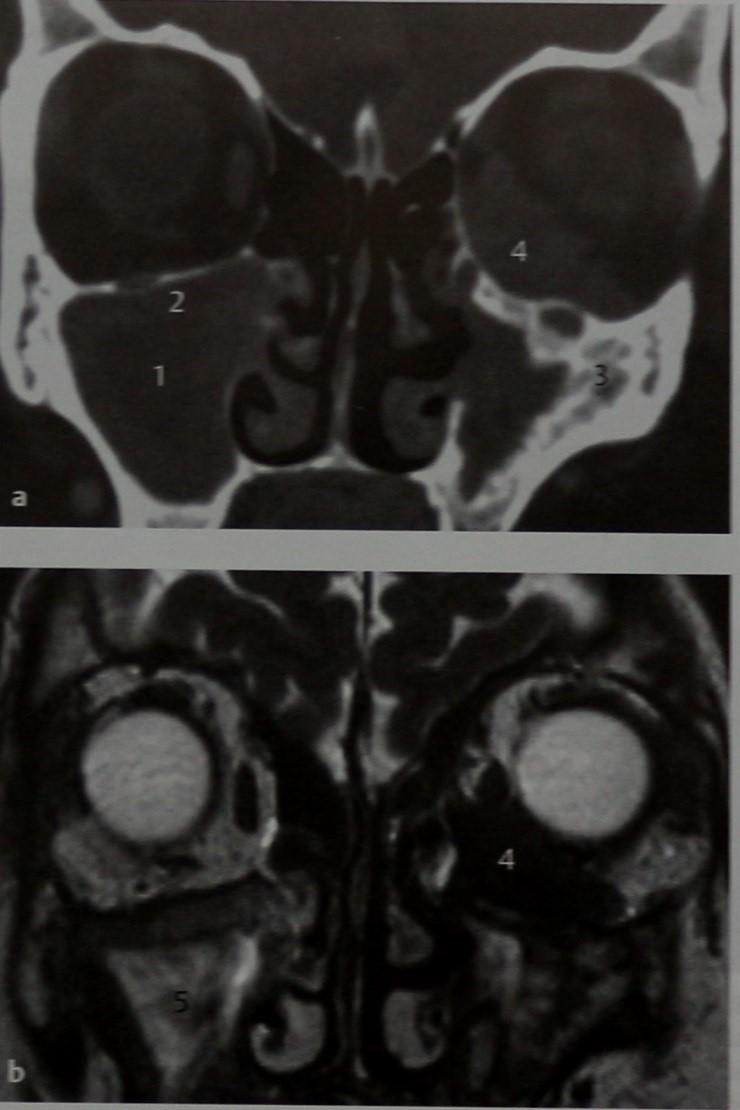 Снимки МРТ и КТ. Гранулематоз Вегенера с вовлечением в процесс глаз