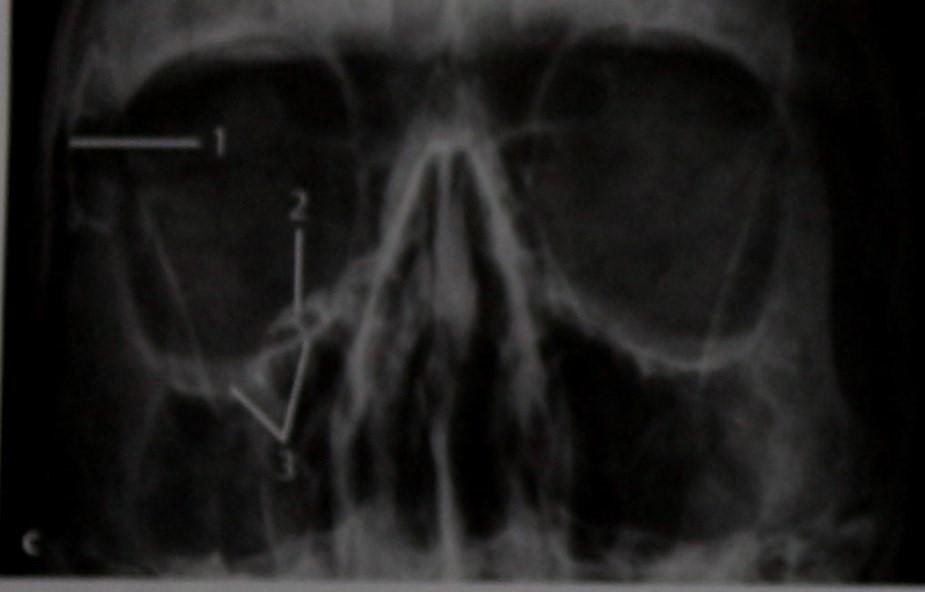 Снимки МРТ и КТ. Перелом переднего отдела черепа