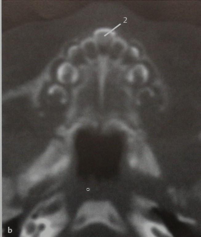 Снимки МРТ и КТ. Аномалии грушевидного отверстия