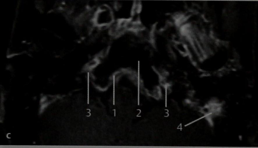 Снимки МРТ и КТ. Воспалительный процесс в области основания черепа