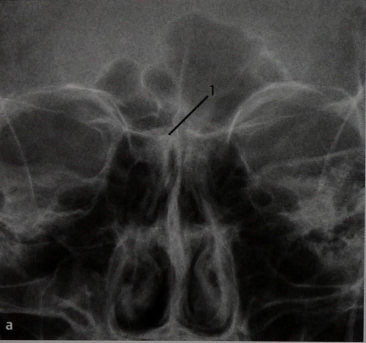 Снимки МРТ и КТ. Остеома