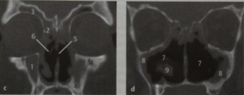 Снимки МРТ и КТ. Гранулематоз Вегенера