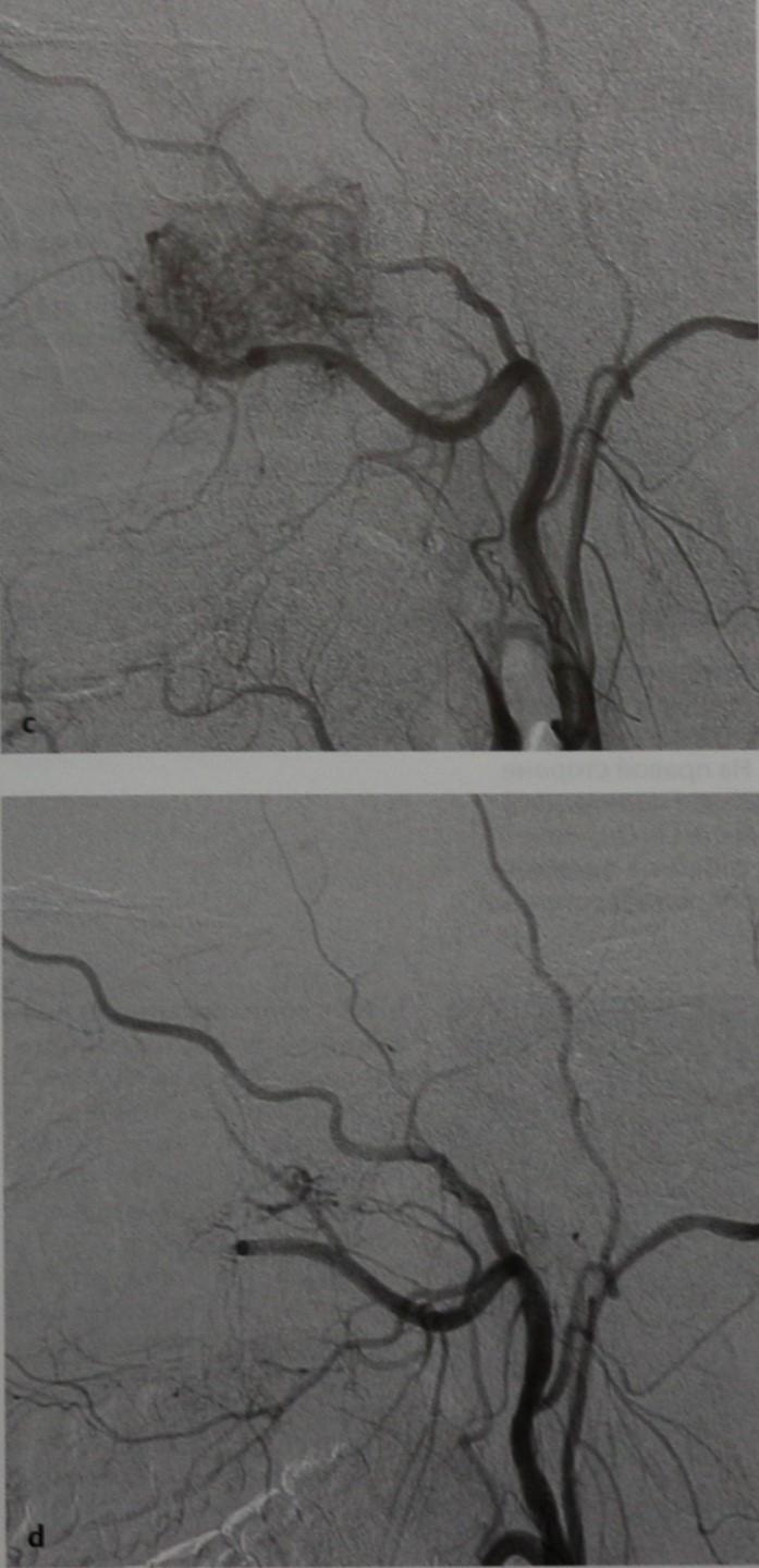 Снимки МРТ и КТ. Ювенильная ангиофиброма