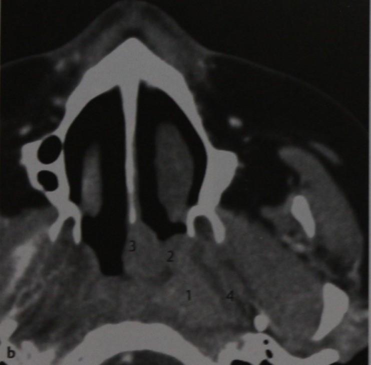 Снимки МРТ и КТ. Рак носоглотки