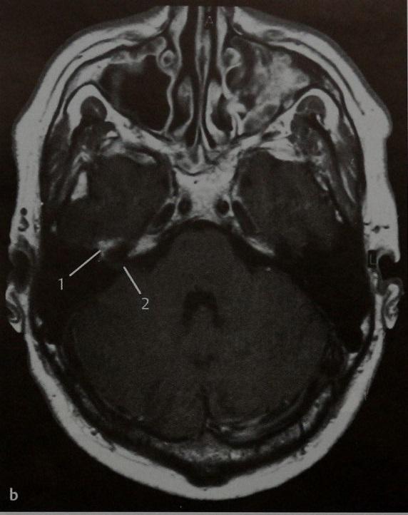 Снимки МРТ и КТ. Гемангиома коленчатого ганглия