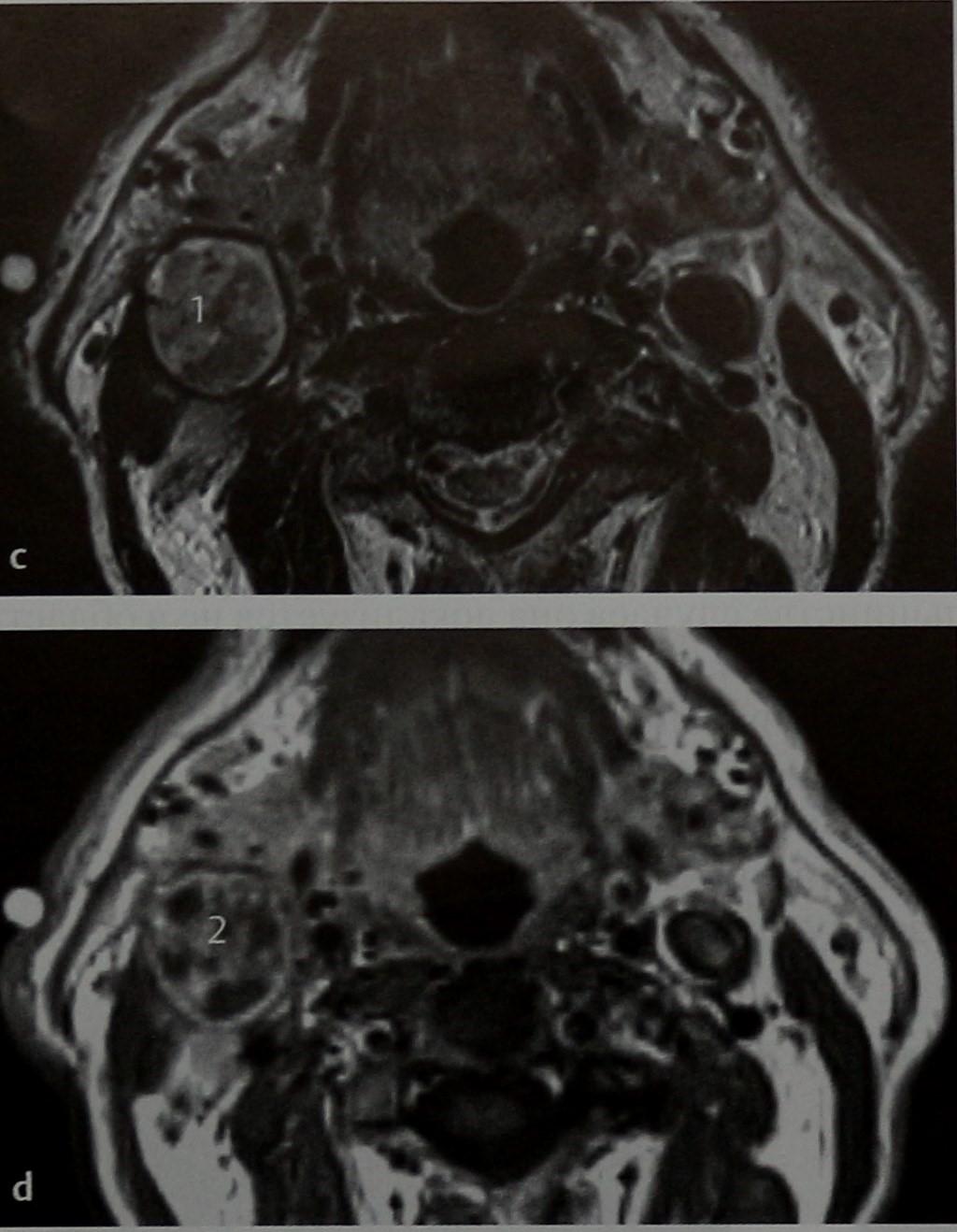 Снимки МРТ и КТ. Неходжкинские лимфомы