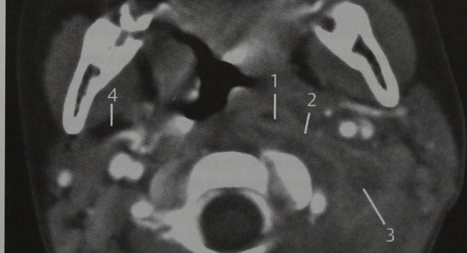 Снимки МРТ и КТ. Окологлоточный абсцесс
