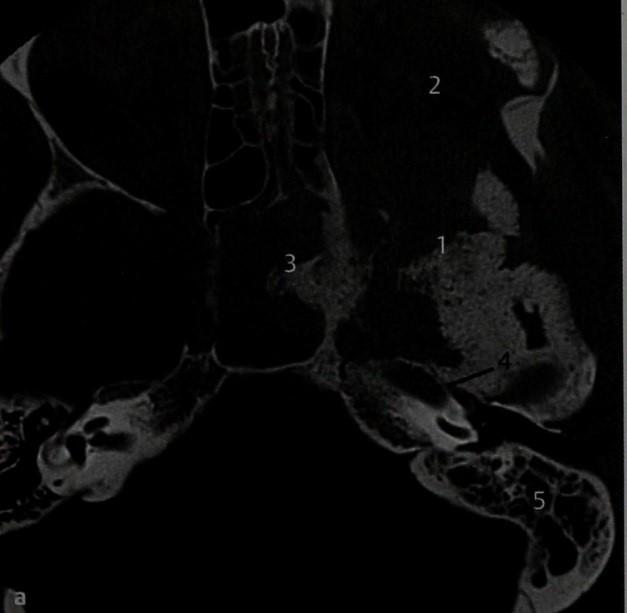Снимки МРТ и КТ. Менингиома, сопровождающаяся деструкцией черепа