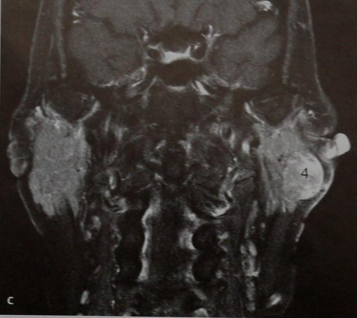 Снимки МРТ и КТ. Ацинозно-клеточная опухоль