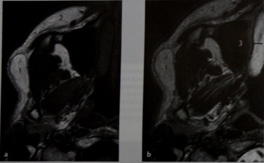 Снимки МРТ и КТ. Ранула подъязычной железы