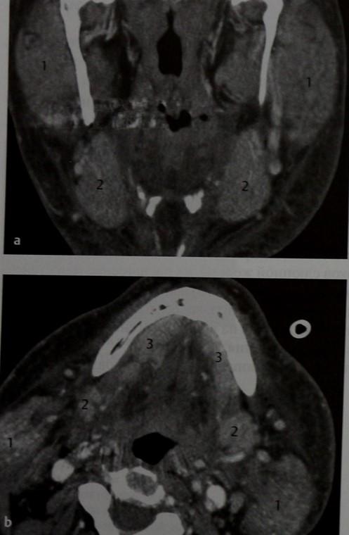 Снимки МРТ и КТ. Сиаладенит