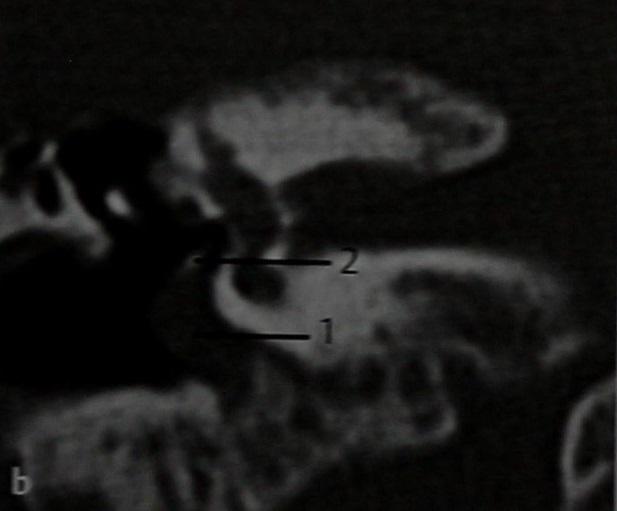 Снимки МРТ и КТ. Гломусная опухоль уха (барабанная параганглиома)