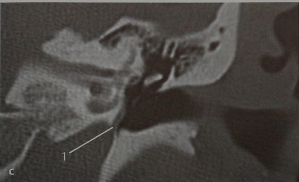 Снимки МРТ и КТ. Персистирующая артерия