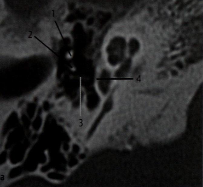Снимки МРТ и КТ. Стапедэктомия, контроль положения протеза стремечк