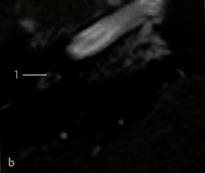 Снимки МРТ и КТ. Шваннома улиткового нерва
