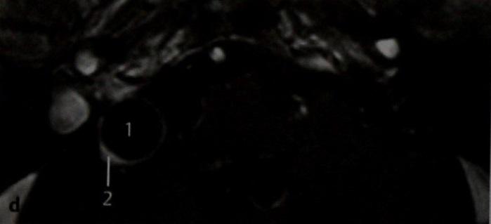 Снимки МРТ и КТ. Кистозное перерождение шванномы