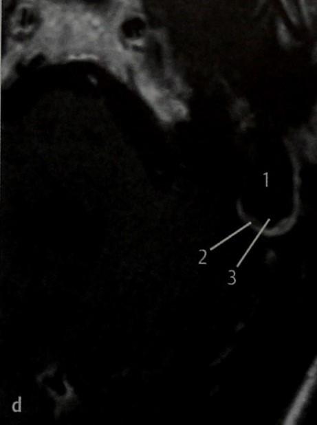 Снимки МРТ и КТ. Холестеатома, распространяющаяся в полость черепа