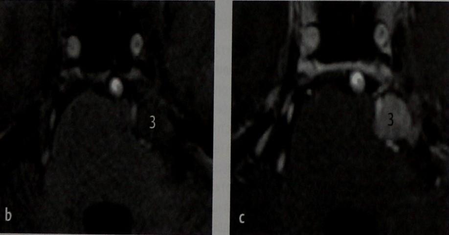Снимки МРТ и КТ. Шваннома тройничного нерва