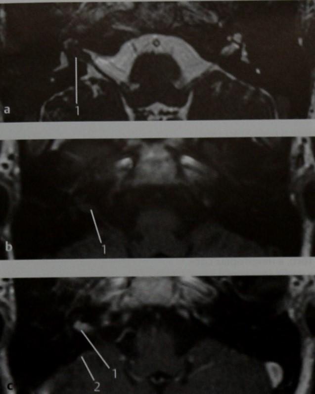 Снимки МРТ и КТ. Отосифилис и интракраниальные осложнения