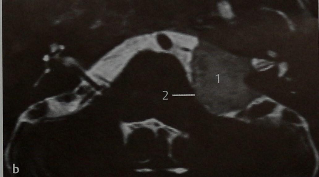 Снимки МРТ и КТ. Менингиома мостомозжечкового угла