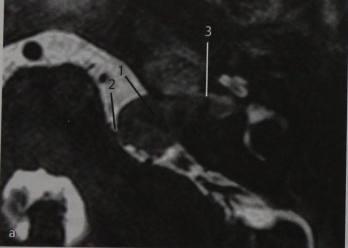 Снимки МРТ и КТ. Шваннома мостомозжечкового угла