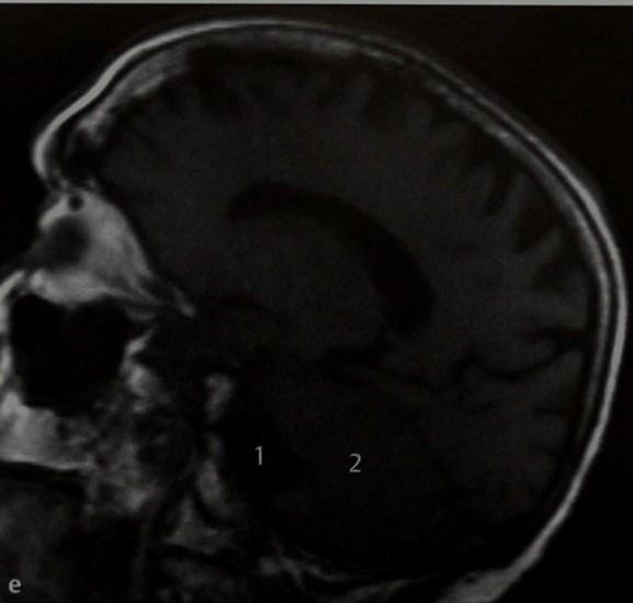 Снимки МРТ и КТ. Арахноидальные кисты