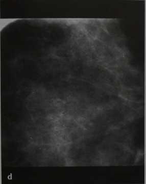 Снимки МРТ и КТ. Маммография: маммография с увеличением