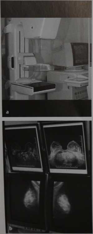 Снимки МРТ и КТ. Маммография: цифровая маммография