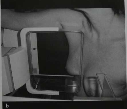 Снимки МРТ и КТ. маммография, медиолатеральная проекция