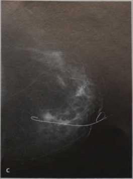 Снимки МРТ и КТ. Метод послеоперационной маркировки