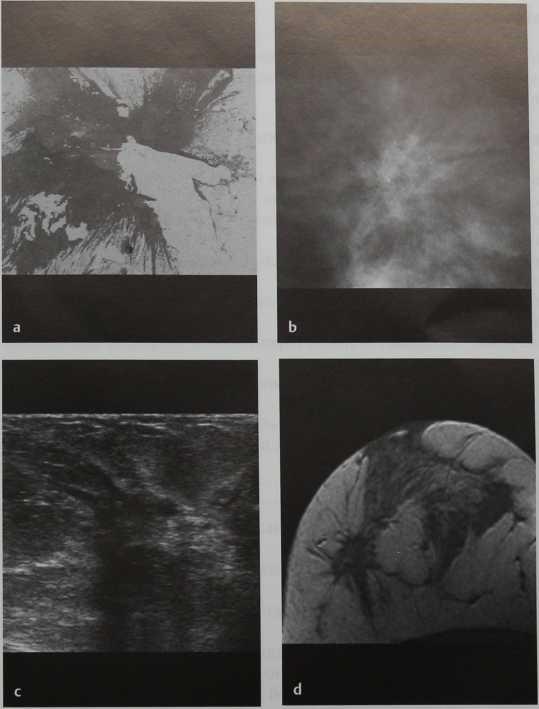 Снимки МРТ и КТ. Нарушение структуры