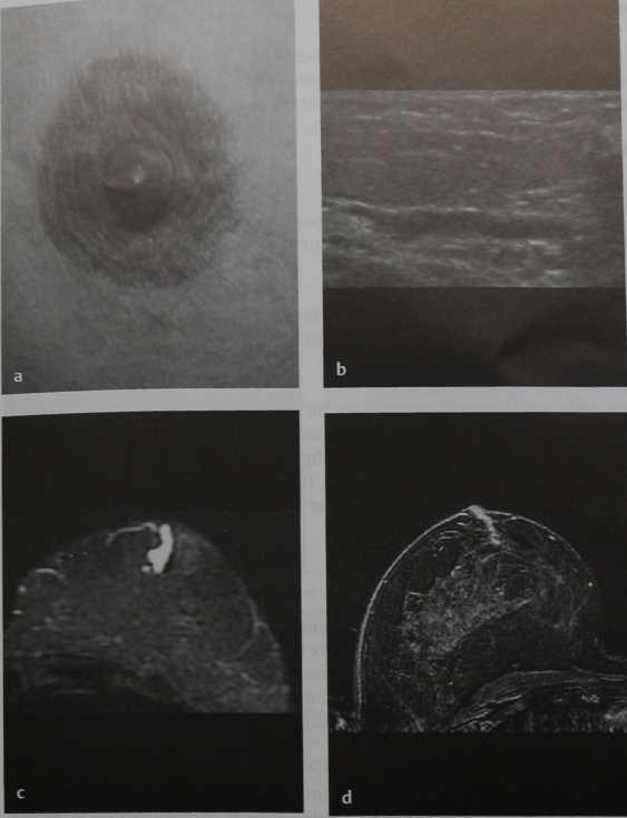 Снимки МРТ и КТ.  Некровянистые выделения из соска