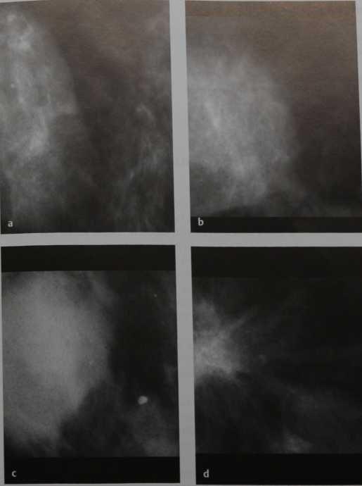Снимки МРТ и КТ. Объемное образование, контуры