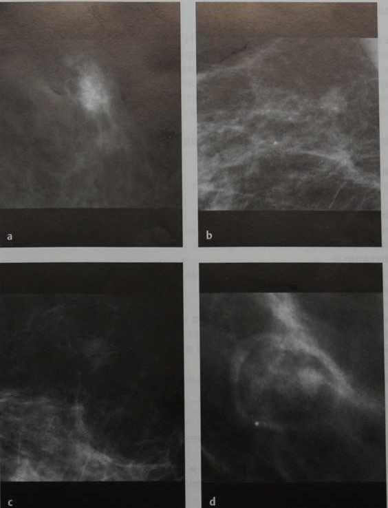 Снимки МРТ и КТ. Обьемное образование, плотность
