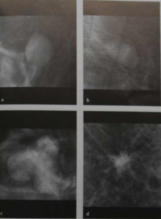 Снимки МРТ и КТ. Обьемное образование, форма