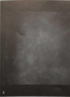 Снимки МРТ и КТ. Плеоморфные микрокальцинаты