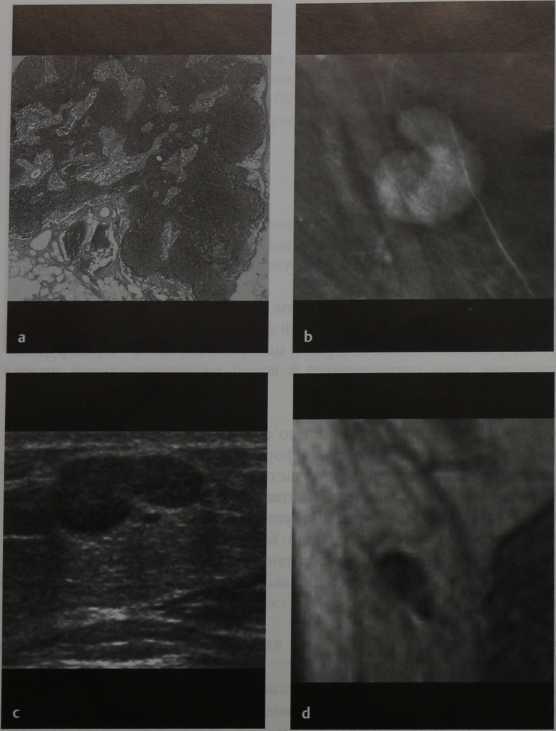 Снимки МРТ и КТ. Подмышечные лимфатические узлы