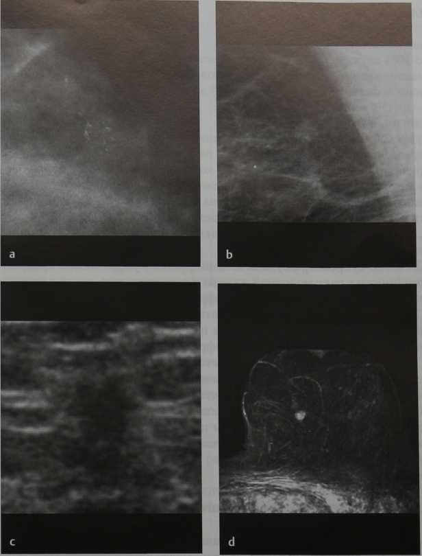 Снимки МРТ и КТ. Раннее обнаружение