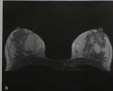 Снимки МРТ и КТ. Магнито-резонансная маммография
